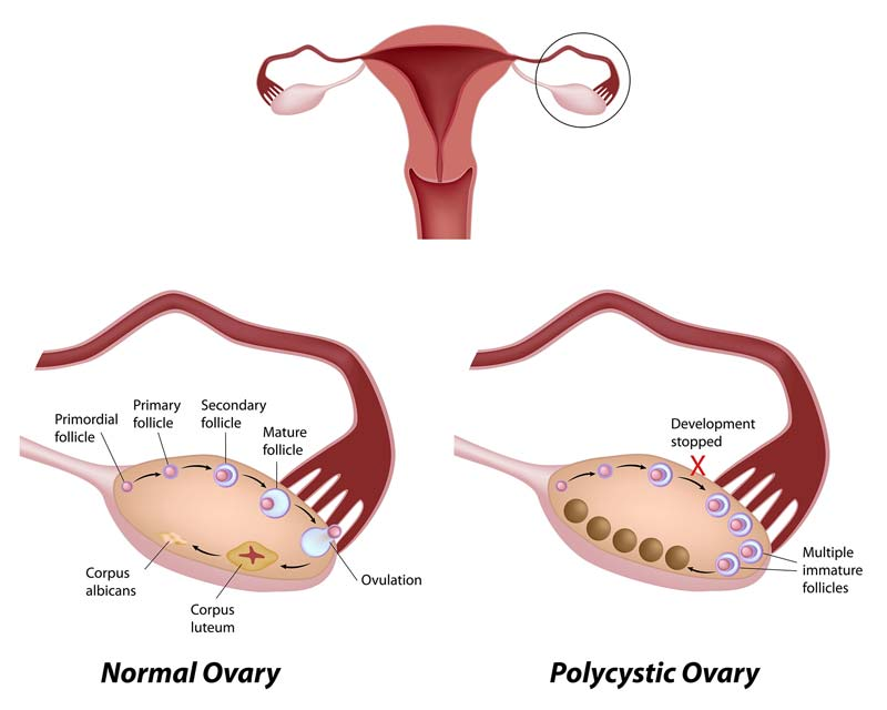 PCOS and IVF